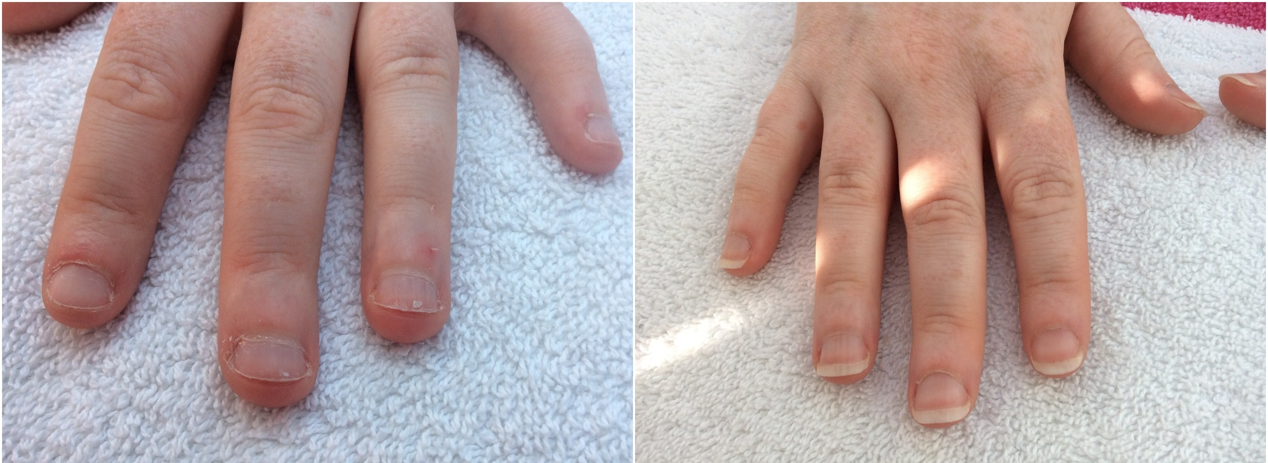 Before and After IBX nail treatment Marie-Louise Coster